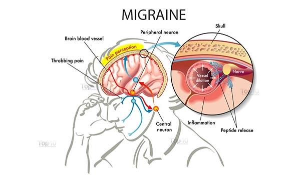 Micron headache. thinatamil -