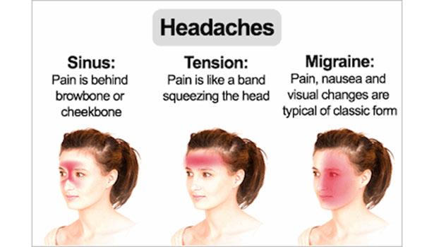 Micron headache thinatamil -