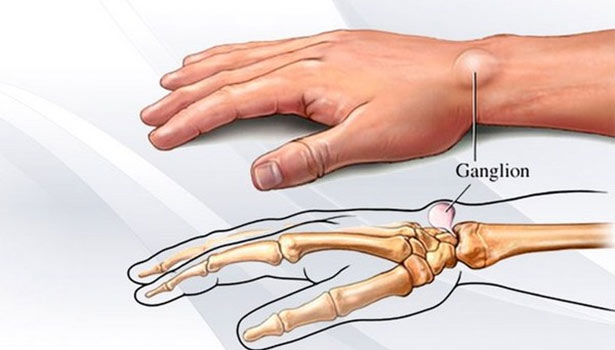Wrist ganglion cyst. thinatamil -
