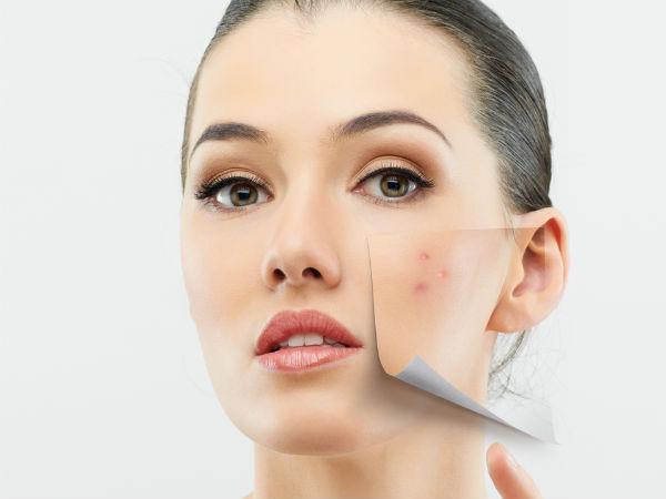 ayurvedic treatment for pimples and scars karunjeerakam