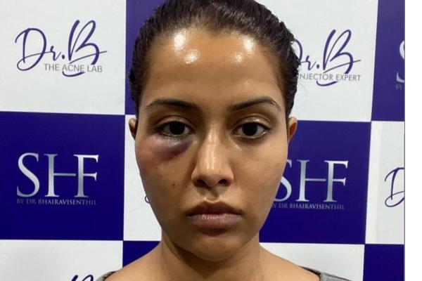 raiza-facial-thinatamil
